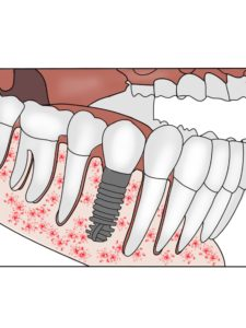 Replacing Missing Teeth Dental Implant
