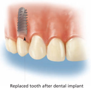 Replaced Tooth After Dental Implant